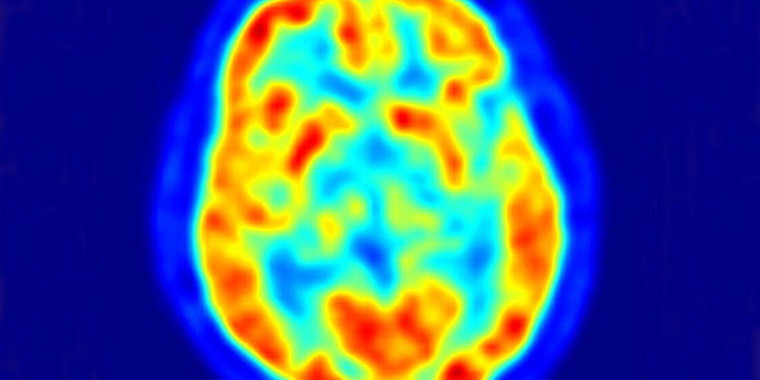 AL Gehirn im PET - Kontrastmittel leuchtet rot